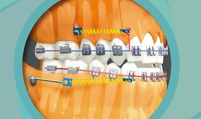 micro impants orthodontie