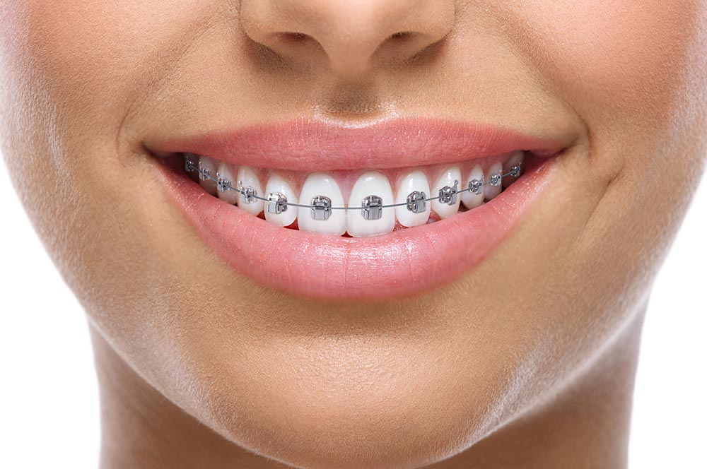 genius system sourire